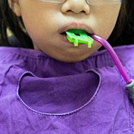 Экспресс-методика фторирования детских зубов