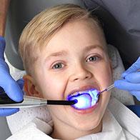 Классический способ фторирования детских зубов